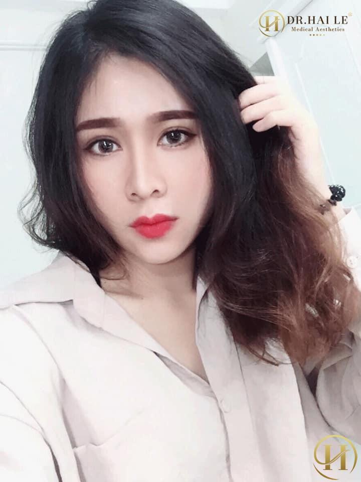 Hot-face Quỳnh Trang: Thẩm mỹ có gì xấu mà phải giấu!