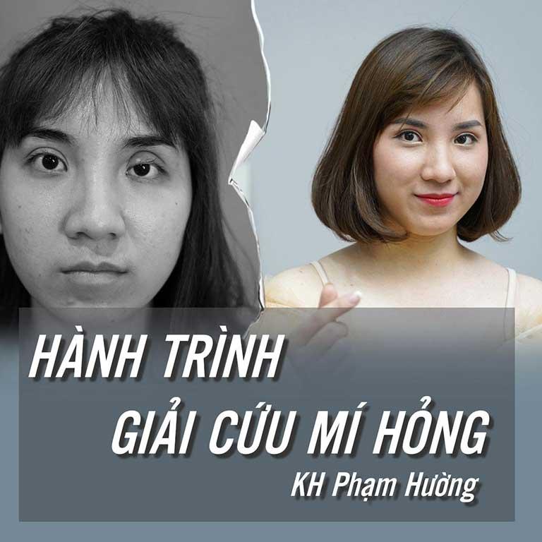 Hành trình giải cứu mí hỏng - Phạm Hường mobile