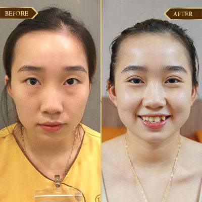 Lê Thị Nữ, 32 tuổi, Lạng Sơn