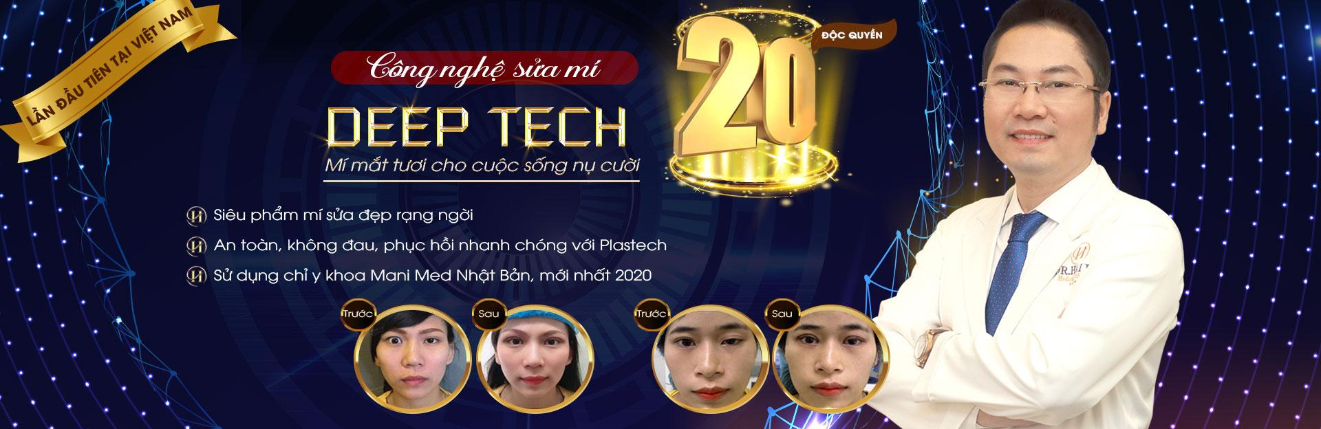 Sửa mí Deep Tech20 pc