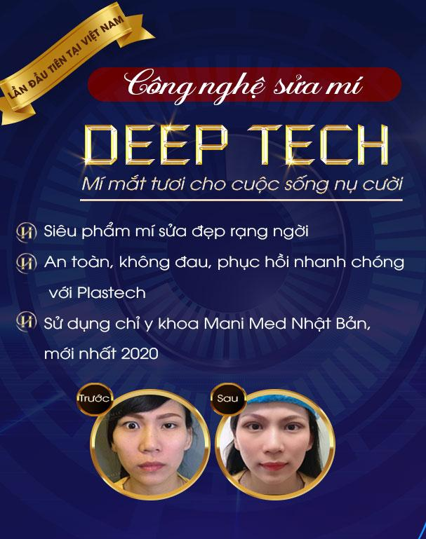 Sửa mí Deep Tech20 mobile