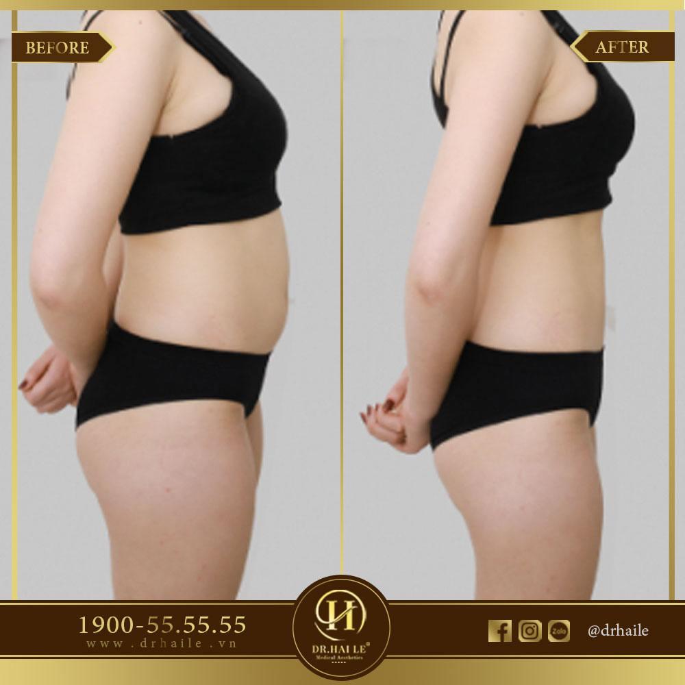 Kết quả giảm mỡ bụng 1