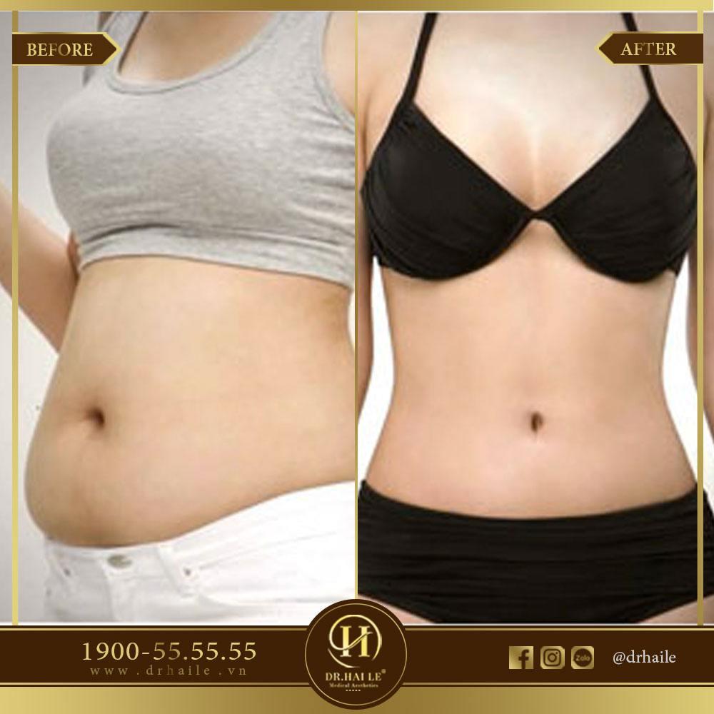 Kết quả giảm mỡ bụng 2