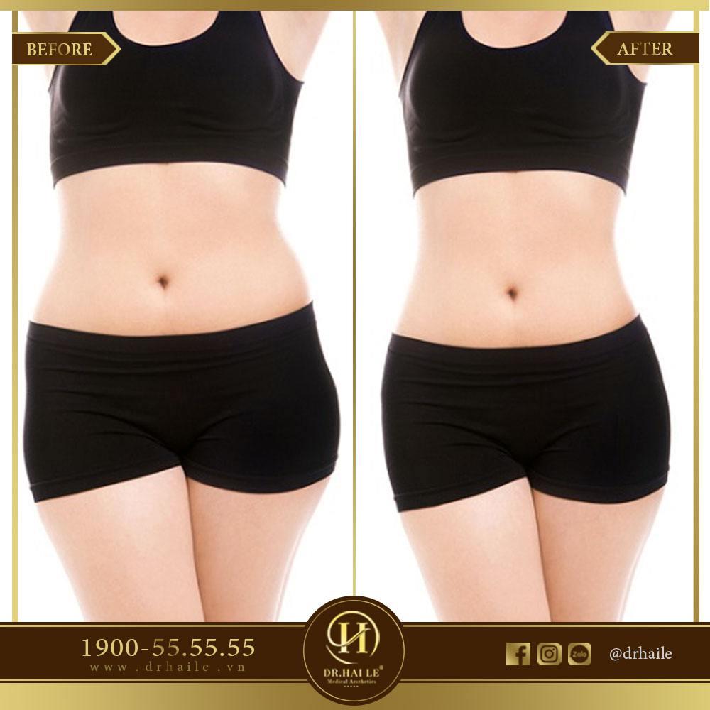 Kết quả giảm mỡ bụng 3