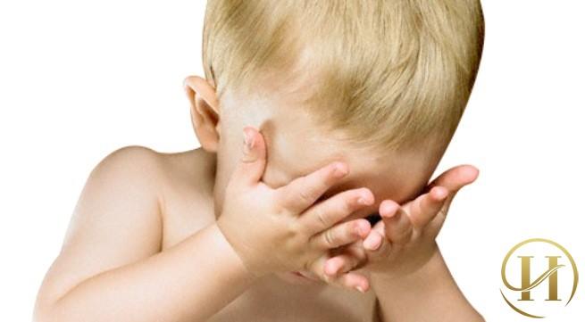 Thâm quầng mắt ở trẻ