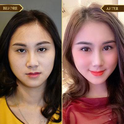 Lưu Thị Mai, 30 tuổi, Quảng Ninh