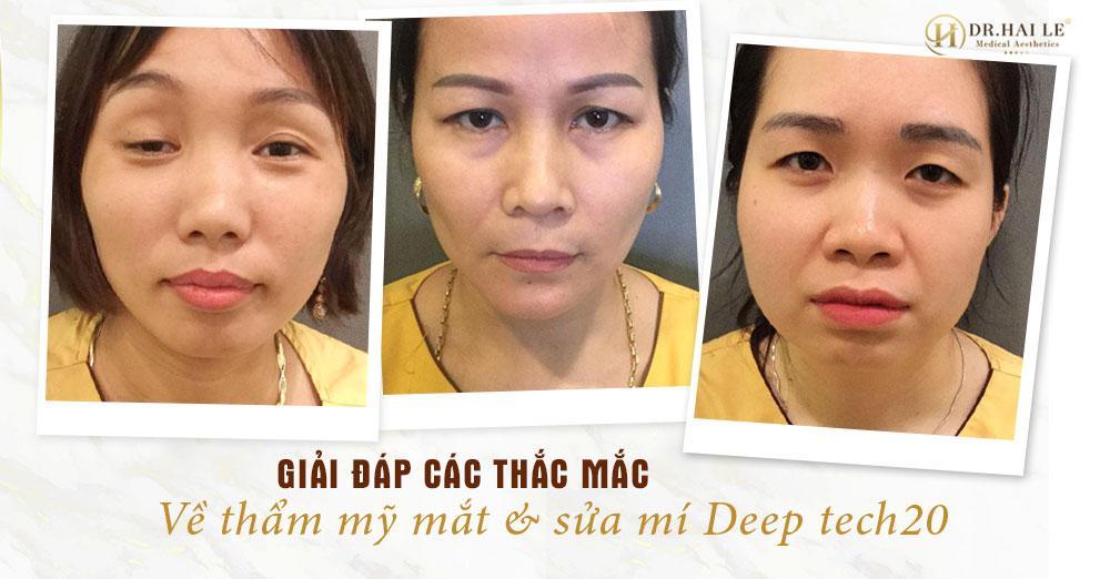 Cùng Dr.Hải Lê giải đáp các thắc mắc về thẩm mỹ mắt và sửa mí mắt