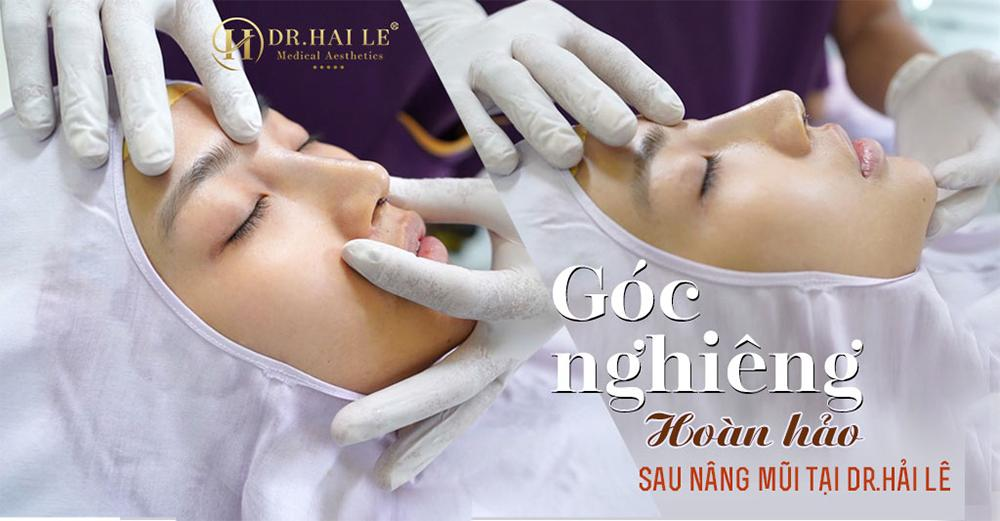 Góc nghiêng hoàn hảo sau nâng mũi tại Dr.Hải Lê