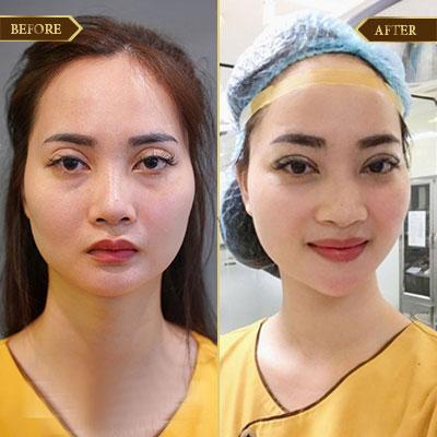 Bích Đào, 25 tuổi, Hà Nội