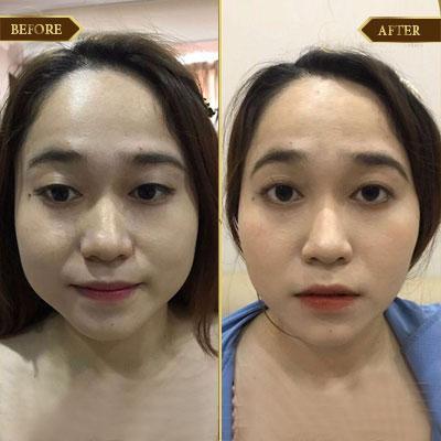 Hà Thị Giang, 32 tuổi, Hà Nội