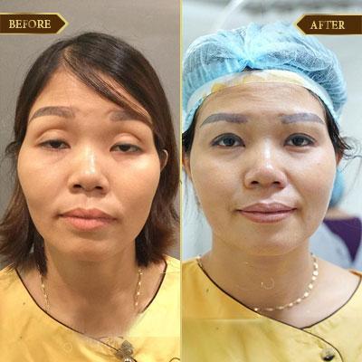 Lê Thị Hạnh, 42 tuổi, Hà Nam