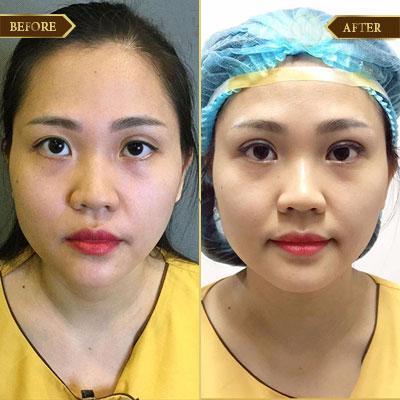 Thùy Anh, 33 tuổi, Quảng Ninh