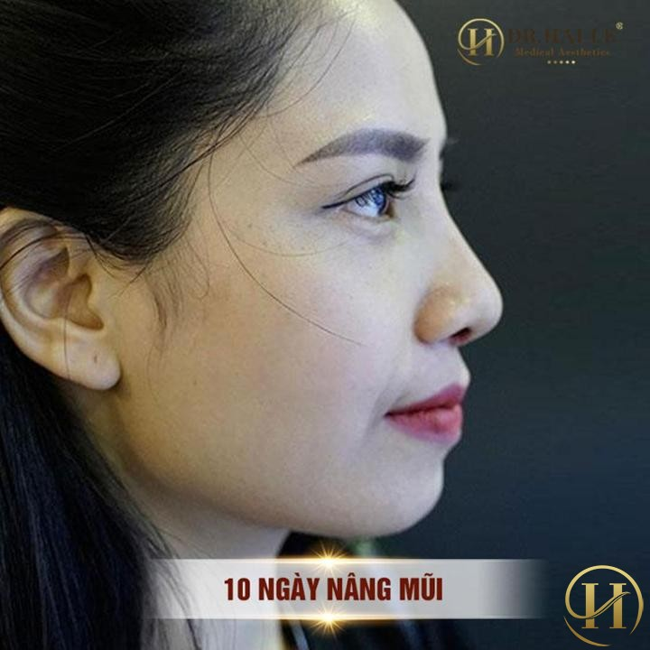 Nâng mũi Demi 5D tại Dr.Hải Lê - Dáng đẹp ngẩn ngơ mọi ánh nhìn