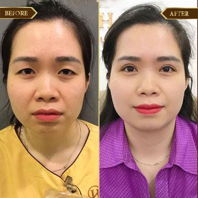 Lê Luyến, 35 tuổi, Hải Phòng