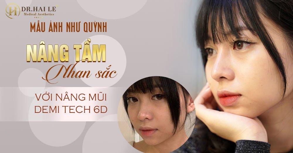 Mẫu ảnh Như Quỳnh nâng tầm nhan sắc với Nâng mũi Demi Tech 6D