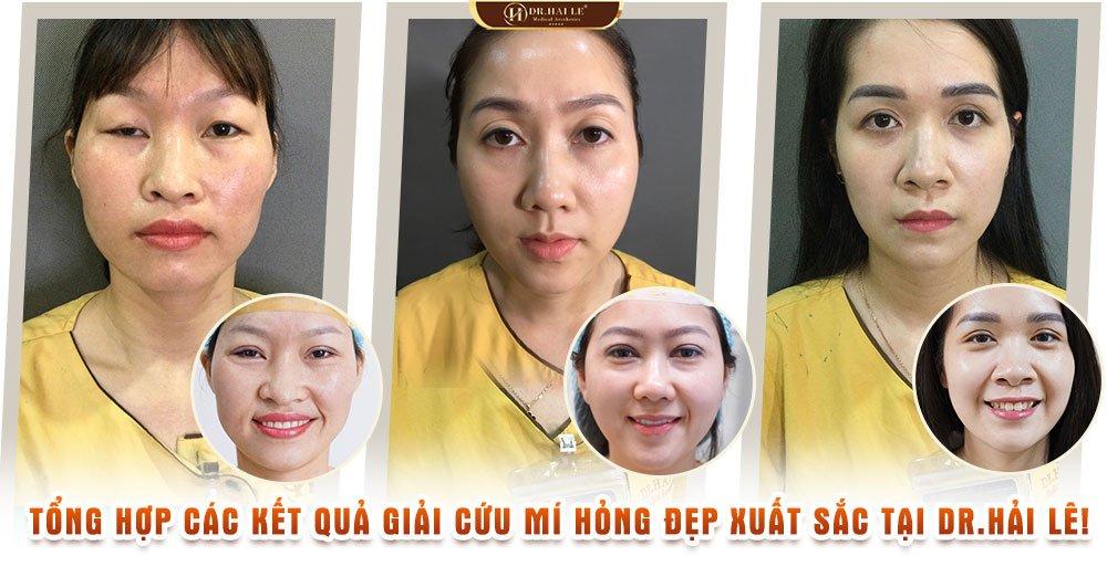 Tổng hợp các kết quả giải cứu mí hỏng đẹp xuất sắc tại Dr.Hải Lê!