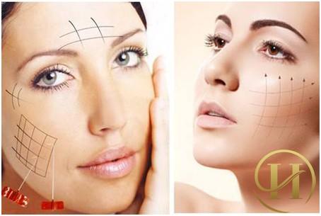 Công nghệ căng da mặt bằng chỉ vàng
