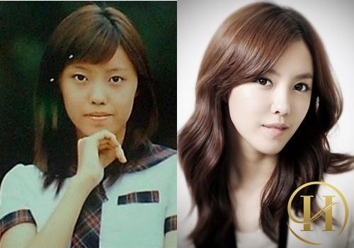Các ngôi sao trẻ xứ Hàn công khai thừa nhận thẩm mỹ