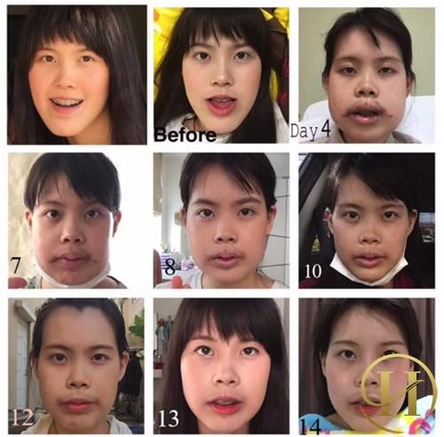 Qúa trình thay đổi của cô gái trẻ