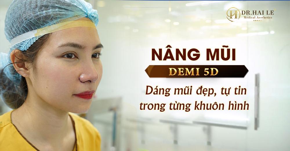 Nâng mũi Demi 5D - Dáng mũi đẹp, giúp bạn tự tin trong từng khuôn hình!