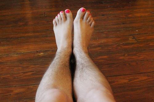 3 nỗi khổ của các cô nàng mắc chứng rậm lông và cách giải quyết