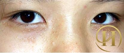 Hình ảnh mụn thịt quanh vùng mắt
