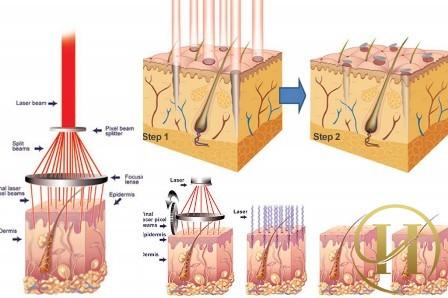 Quy trình chữa mụn thịt tận gốc bằng công nghệ Laser CO2