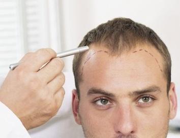 Bác sĩ thăm khám và đánh giá cấp độ rụng tóc, hói đầu