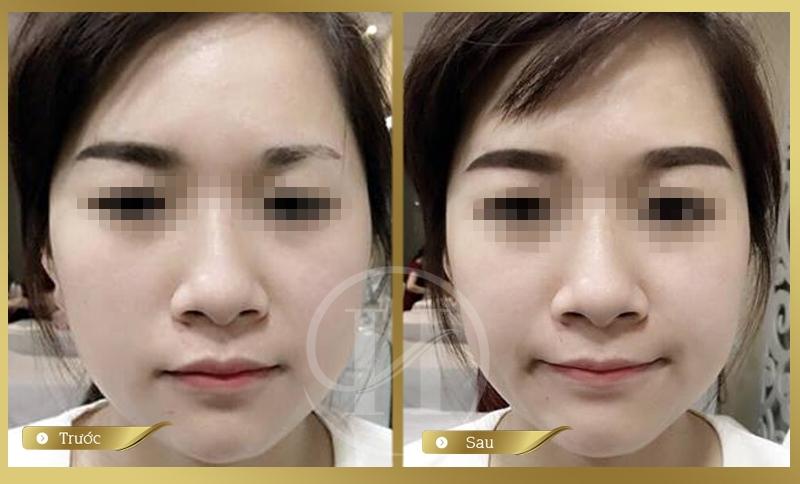 Phun xăm thẩm mỹ Hàn Quốc: Mắt đẹp - Môi xinh - Lông mày phú quý