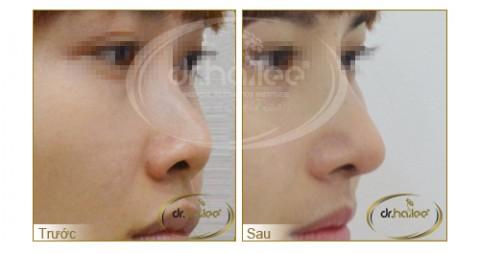 Nâng mũi có thể áp dụng cho cả nam và nữ