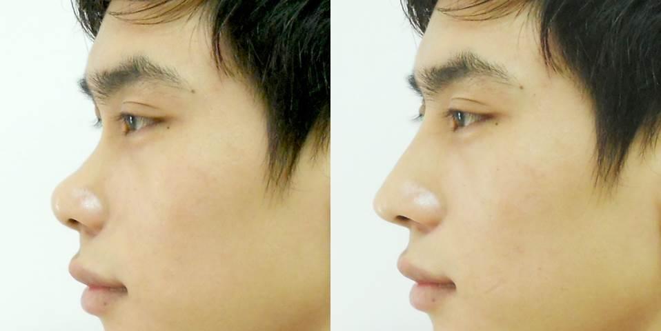Nag mũi Hàn Quốc có thể áp dụng cho cả nam và nữ