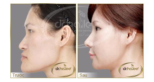 hình ảnh trước và sau khi nâng mũi tại Dr.Hải Lê