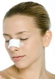 Mũi bị vẹo có thể do bẩm sinh hoặc tai nạn