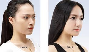 Hình ảnh trước và sau khi nâng mũi bằng sụn vành tai