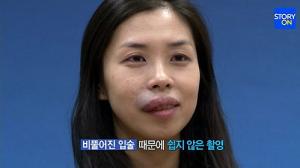 Từ lúc sinh ra đã mang vết bớt đỏ trên khuôn mặt