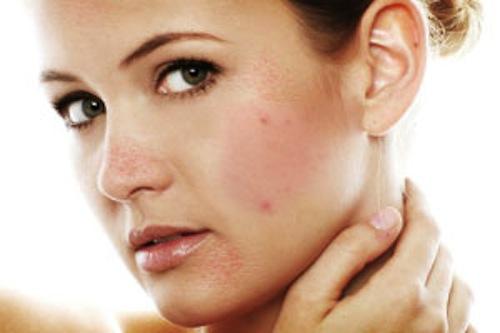 Điều trị da khô và trị mụn